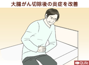 大腸がん切除後の炎症を改善