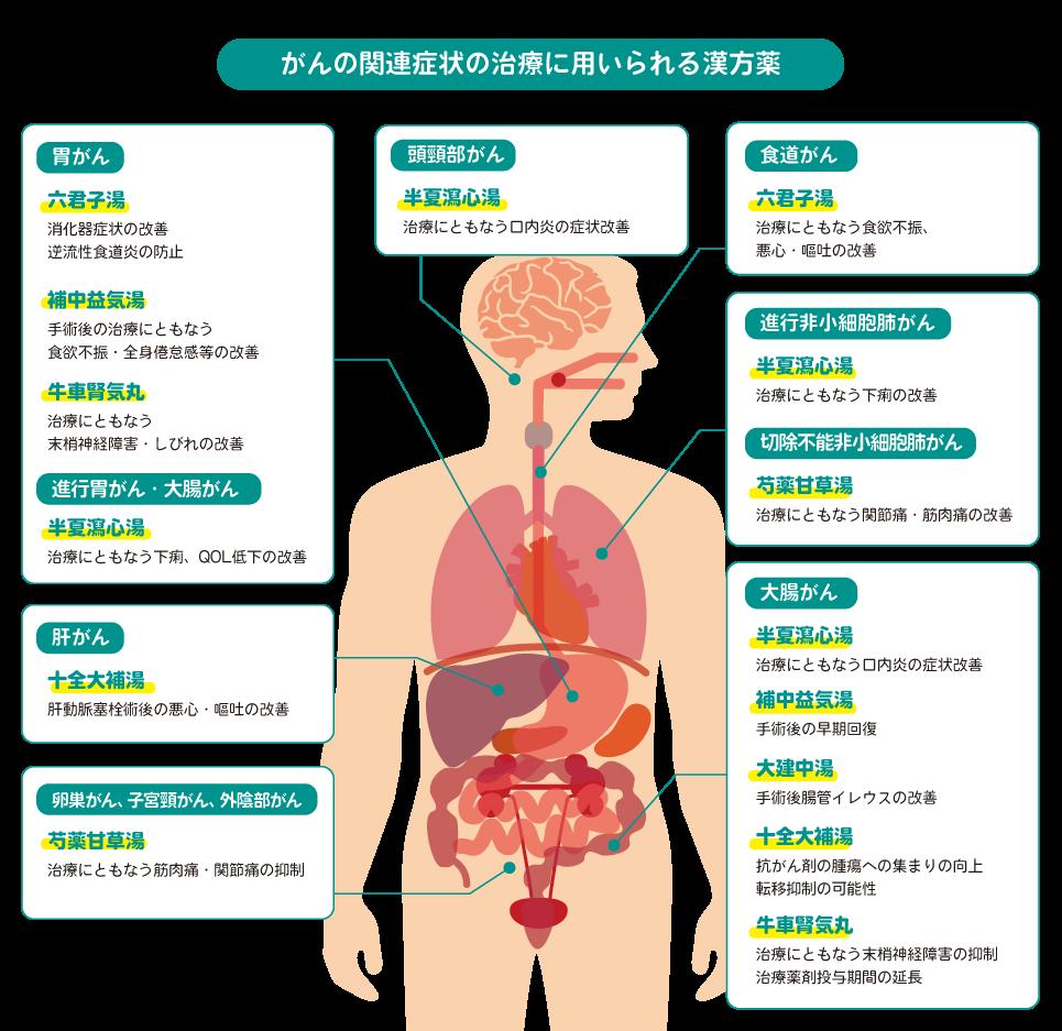 がんの関連症状の治療に用いられる漢方薬