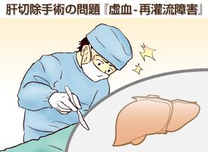 茵ちん蒿湯を手術前に投与すると、肝切除術で問題となる虚血‐再灌流(さいかんりゅう)障害を減らせる可能性が高いことが判明